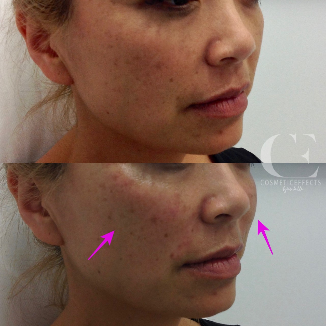 tear trough filler cost melbourne